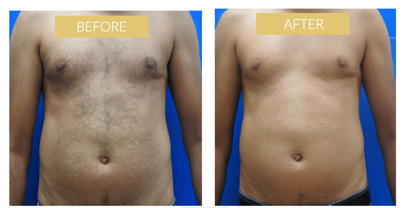 male laser hair removal effect Dublin