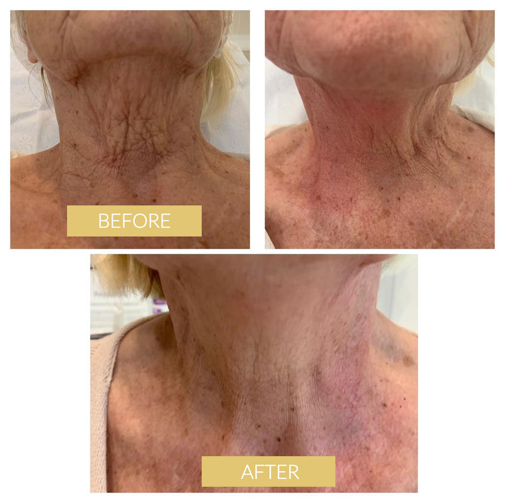 thermolifting effect before after